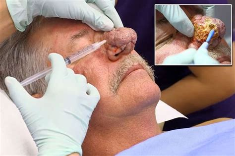 Dr Pimple Popper aids man with nose so big it scared his